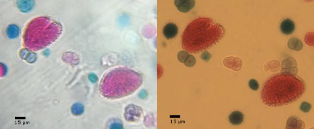 Micro Phone Lens a sinistra (usate con Galaxy S2 - Microscopio Motic AE2000 a destra